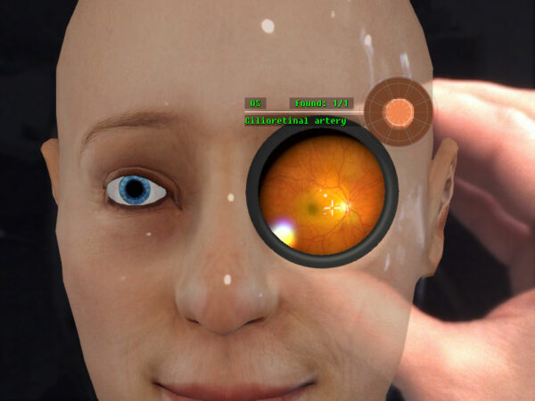 Virtual patient in the Eyesi Indirect Ophthalmoscope simulator