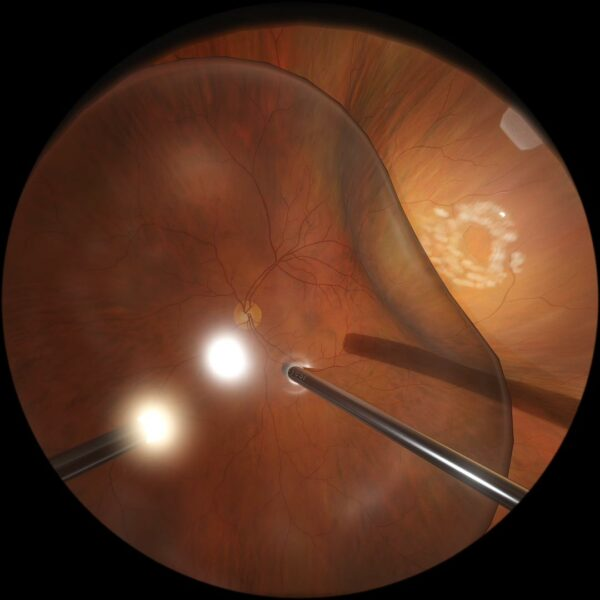Air/PFC exchange in retinal detachment surgery - Eyesi Surgical simulator