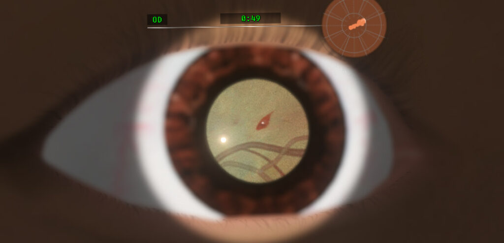 Screenshot of the eye of a virtual patient on the Eyesi Direct simulator showing retinal manifestations of malaria.